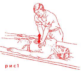 Первая помощь при остановке дыхания Как правильно делать искусственное дыхание