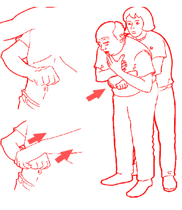 Первая помощь если человек подавился и задыхается что делать