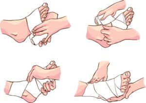 Перва помощь Вывих ноги (лодыжки, голеностопного сустава, щиколотки)