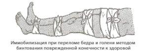 Иммобилизация (перевозка транспортировка) пострадавшего с переломом бедра и голени