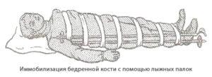 Иммобилизация (перевозка транспортировка) пострадавшего с переломом бедра