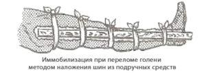 Иммобилизация (перевозка транспортировка) пострадавшего с переломом голени