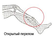 Открытый перелом кости нижней конечности