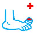Первая помощь при ушибе пальца на ноге Симптомы